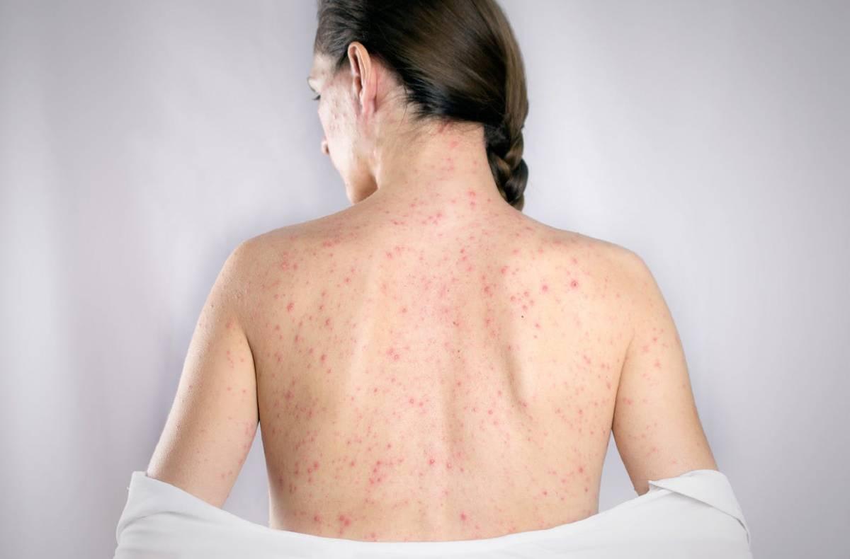 German-measles-RUBELLA.jpg